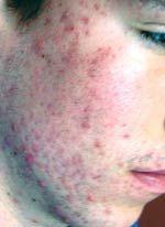 Acne Treatment in Washington DC, photo before